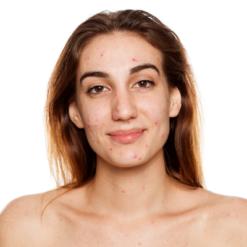 Pattanásos bőrre